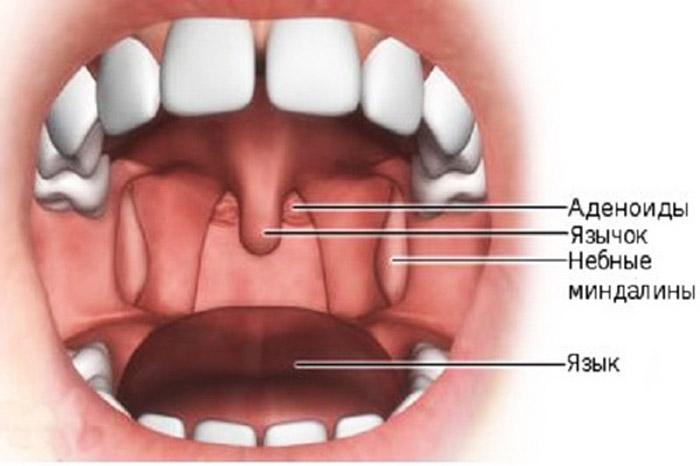 adenoidyi - Десять самых бесполезных человеческих органов