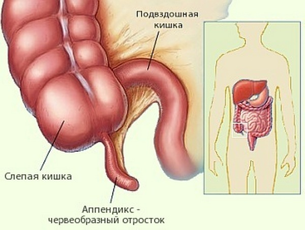 apendoks - Десять самых бесполезных человеческих органов