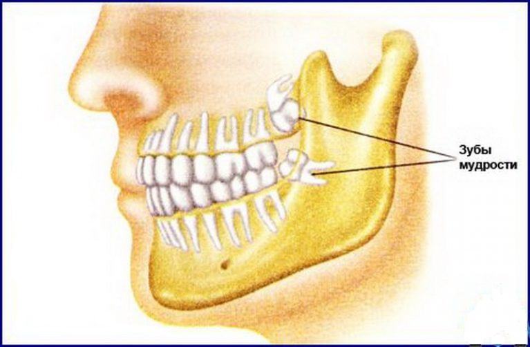 rol zubov mudrosti dlja zdorovja cheloveka 1 - Десять самых бесполезных человеческих органов